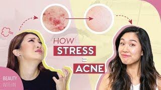 5 Signs + 5 Easy Cures to Prevent Stressed Skin & Acne