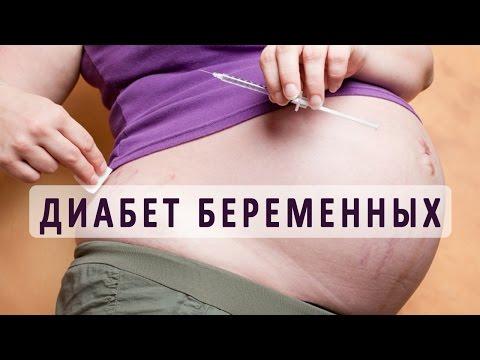 Сахарный диабет беременных