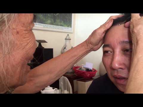 Cô Phi 76 tuổi chữa tràn dịch khớp gối cho bệnh nhân bằng Diện Chẩn