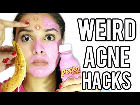 Weird Acne Zit Hacks That Work Fast