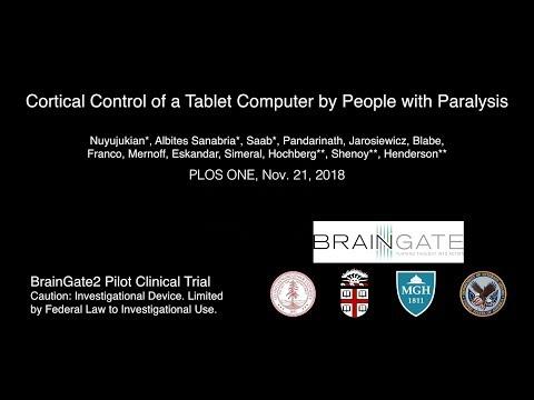 Implante no cérebro permite controlar tablet e usar internet mesmo com paralisia