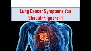 Symptoms of Lung Cancer You Should Not Ignore!!