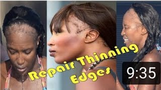 GROW BACK THINNING EDGES AND BALD SPOTS  STOP HAIR LOSS