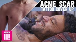hqdefault - Does Acne Damage Tattoos