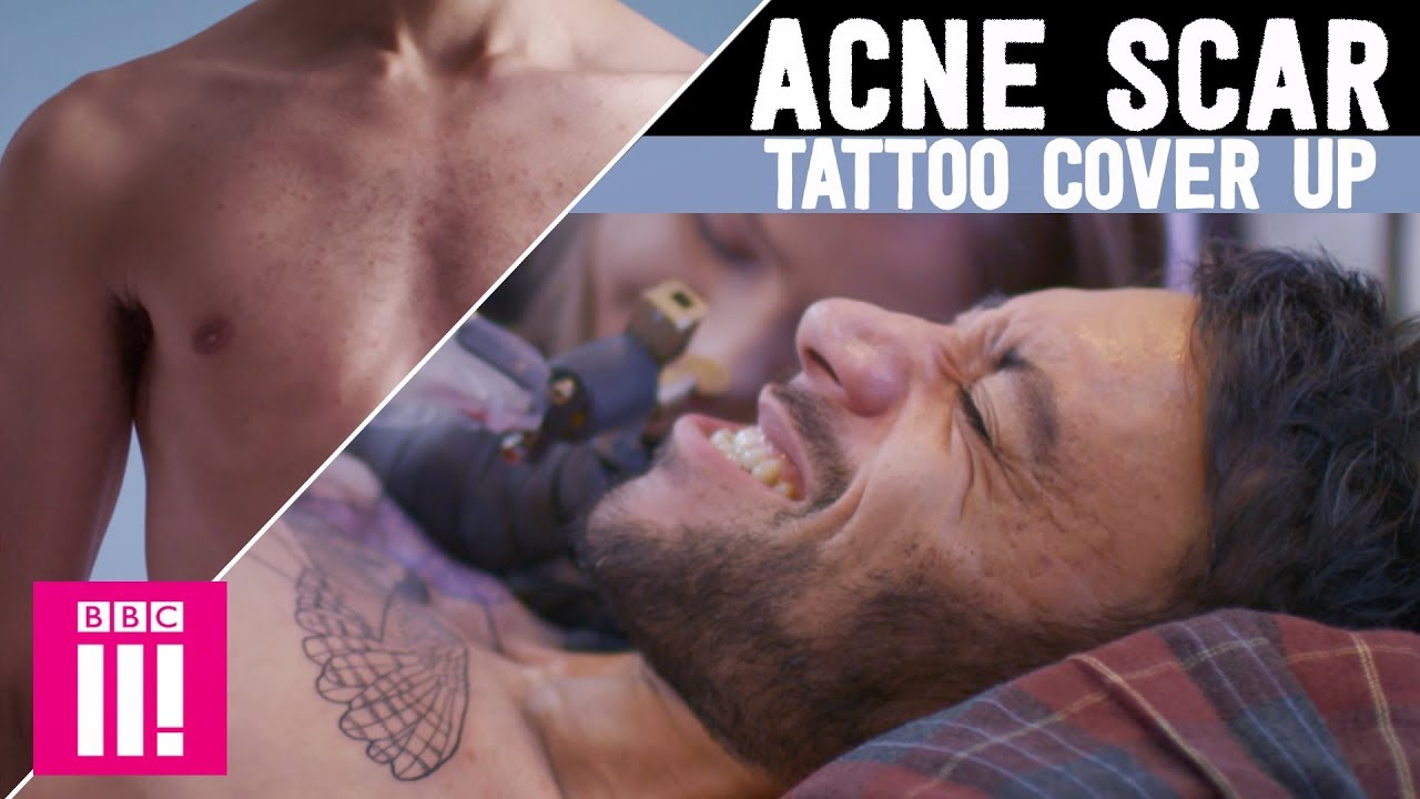 7be06e88f Amazing Acne Scar Cover Up | A Tattoo To Change Your Life - YouTube