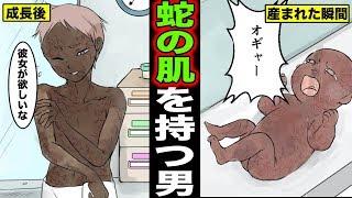ウロコのような肌を持つ男を漫画にしてみました。 実話系漫画チャンネル二代目マニマニピーポー チャンネル登録よろしくお願いします☆...