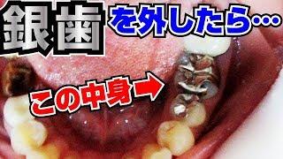 銀歯を外したら…😱Remove silver teeth去除銀牙之後