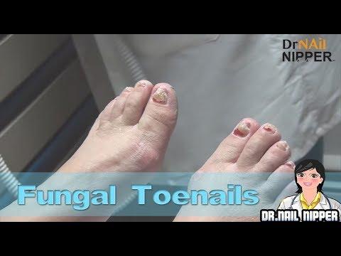 FUNGAL TOENAILS AND ORAL ANTIFUNGAL MEDICATION