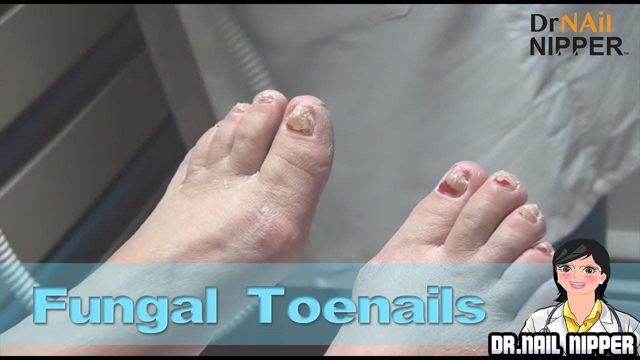Oral Anti Fungal 111