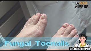 She has Fungus on Toenails. Dr Nail Nipper Fungal Toenails Treatment