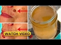 Remove age spots moles warts and pimples in a completely natural way mp3