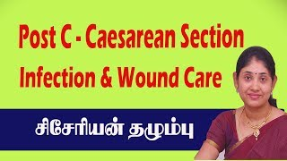 Post C Caesarean Section Delivery Surgery Severe Pain  Infection &Wound Care சிசேரியன் தழும்பு புண்