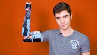 Dieser Junge baute sich eine PROTHESE aus LEGO!