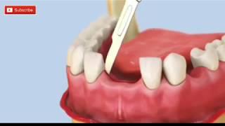 Operasi Pemasangan Gigi Palsu Paling Modern