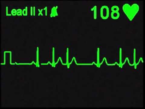 Premature Nodal (Junctional) Contractions - ECG Simulator - Arrhythmia Simulator