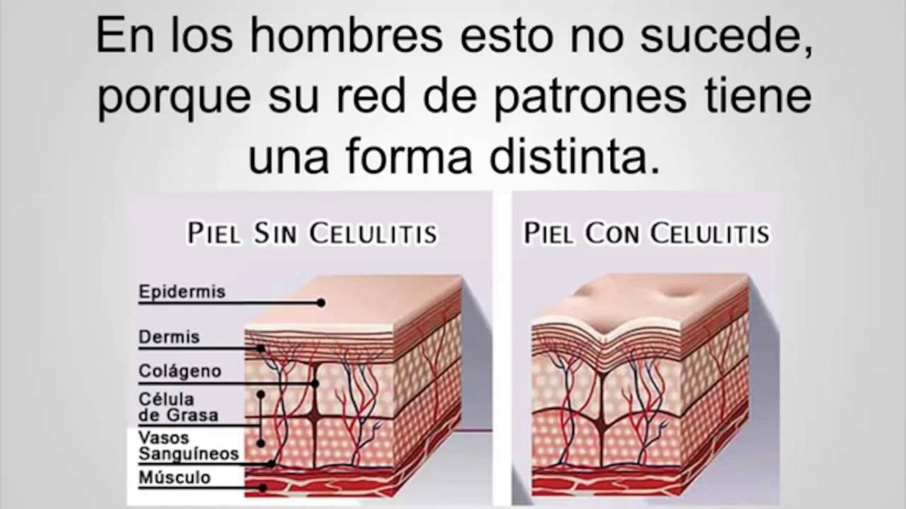 porque se producen las celulitis