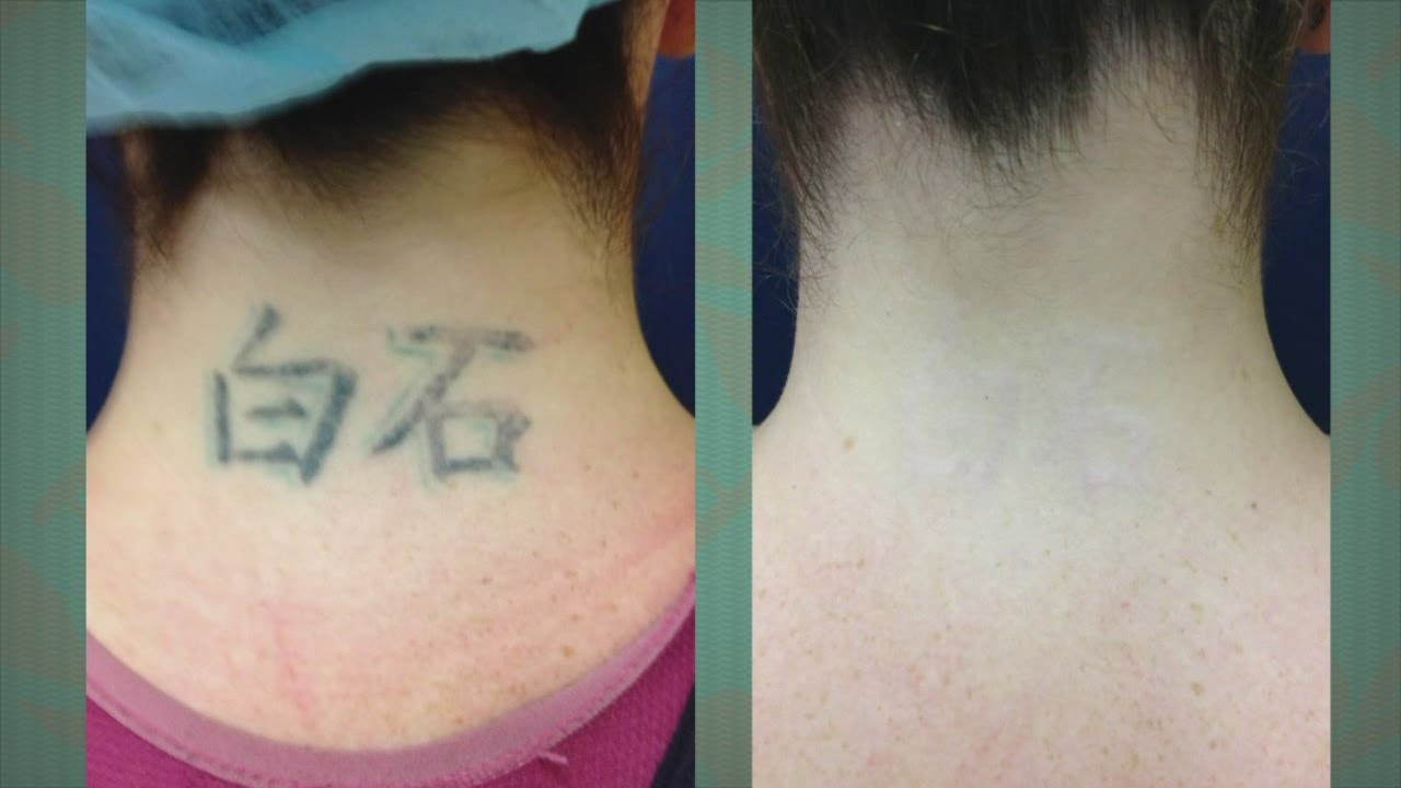 A new tattoo removal procedure at Vein and Skin Center of Hawaii ...