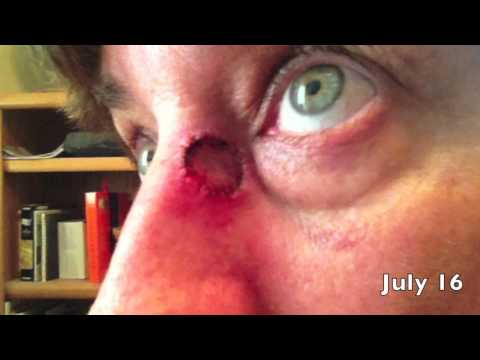Mohs Surgery of Basal Cell Carcinoma Recovery