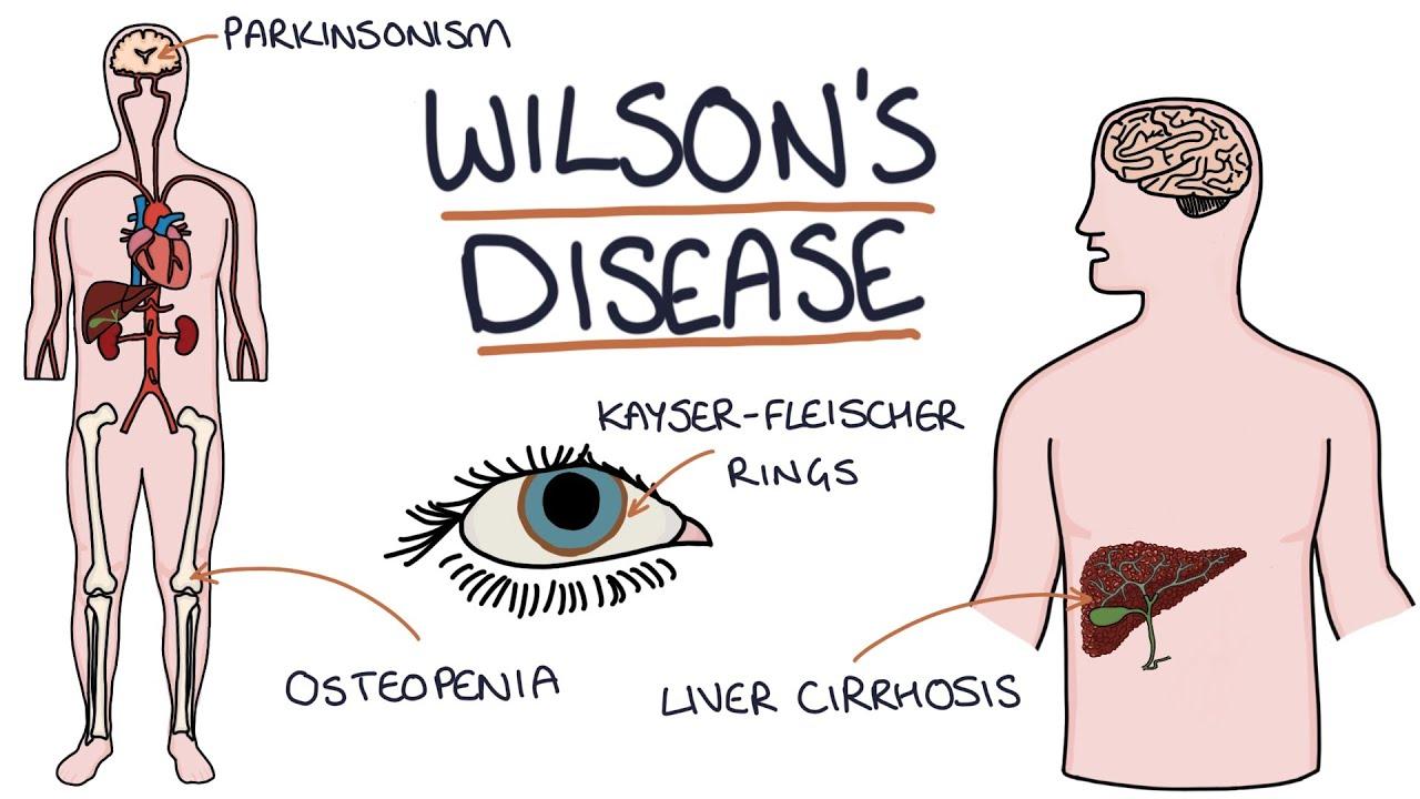Download Understanding Wilson's Disease