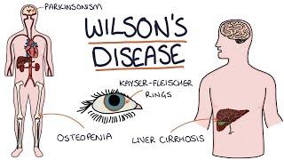 Understanding Wilson's Disease