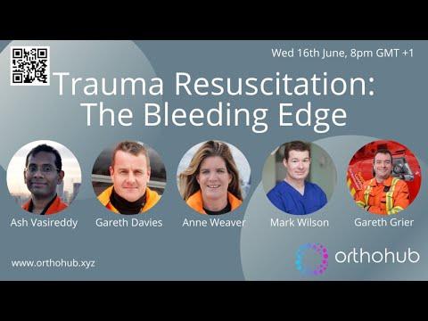 Download Trauma Resuscitation: The Bleeding Edge