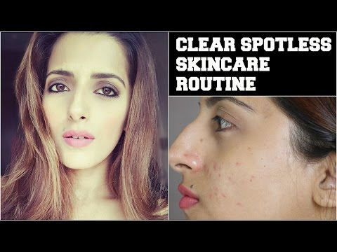 Thumbnail: #Beauty Tips For Face- How To Get Crystal Clear, Glowing, Spotless Skin / Remove Acne & Pimple Scars