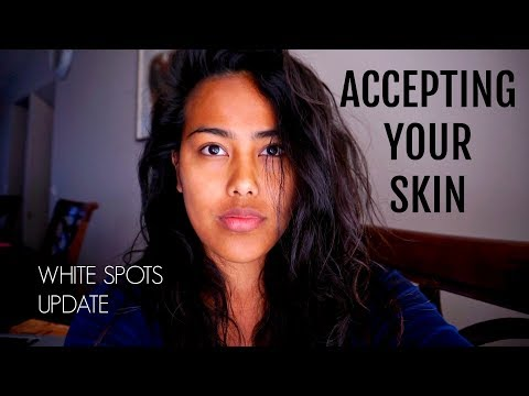Accepting Your Skin (White Spots On Face Update) | TheFrostFamily