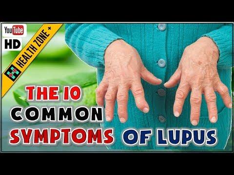 The 10 Common Symptoms of Lupus