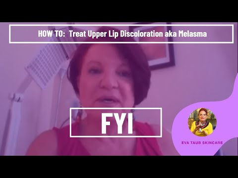 Facial discoloring on uper lip