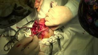 Удаление слухового прохода у собаки(Запись операции по иссечению наружного слухового прохода у собаки., 2014-08-26T06:49:31.000Z)