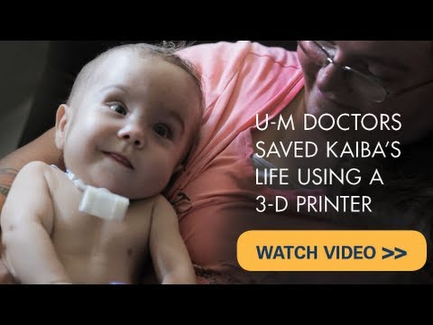Baby's life saved with groundbreaking 3D printed device from UM that restored his breathing