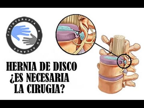 Duele la espalda después de la almohada ortopédica