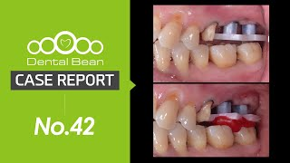 (ENG) SQ Guide surgery Impression \u0026 Bite registration with MUC