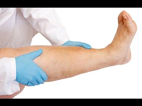 Quenduire les éruptions à atopitcheskom la dermatite