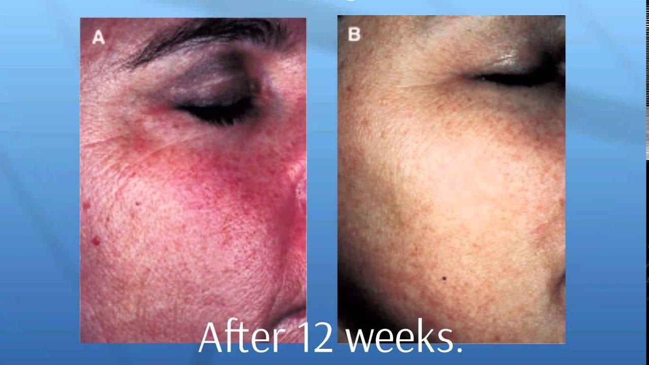 Natural Sensitive Skin Care