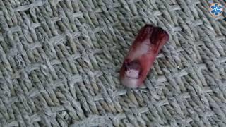 Травматическая ампутация фаланги пальца. Первая помощь.