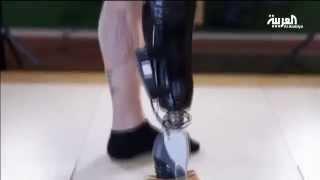 جهاز يمكن مبتوري الأعضاء من التحكم بأطرافهم الصناعية بشكل طبيعي