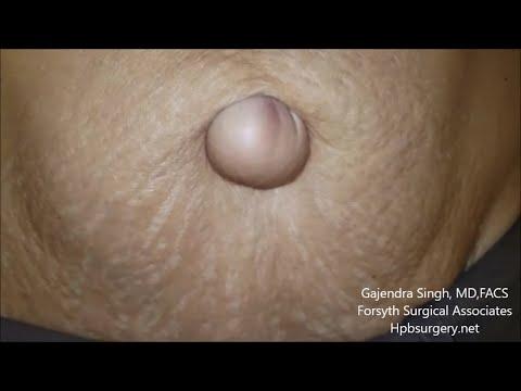 Umbilical Hernia Repair
