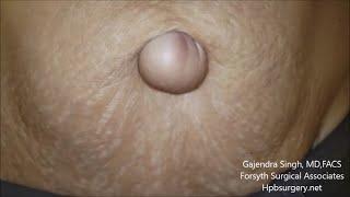 Hernia adalah kondisi yang terjadi karena adanya penonjolan organ seperti misalnya usus melalui dind.