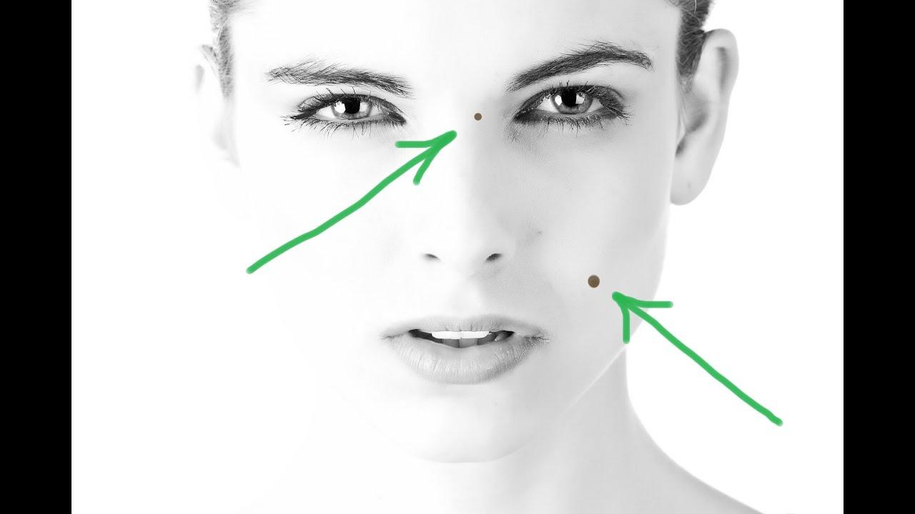A papillómák leesnek. HPV-fertőzés tünetei és kezelése - HáziPatika