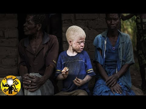 Lo que hacen con los Niños Albinos en AFRICA es PERTURBADOR