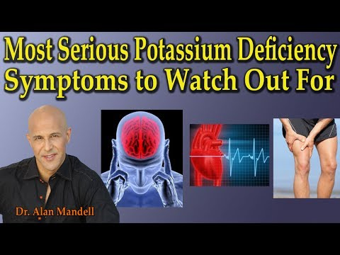3 Most Serious Potassium Deficiency Symptoms to Watch Out For - Dr Alan Mandell, D.C.