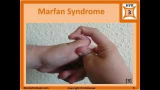 Marfan Syndrome, Osteogenesis Imperfecta & Ehlers Danlos, Blue Sclera Hypermobile Joints Stretchy