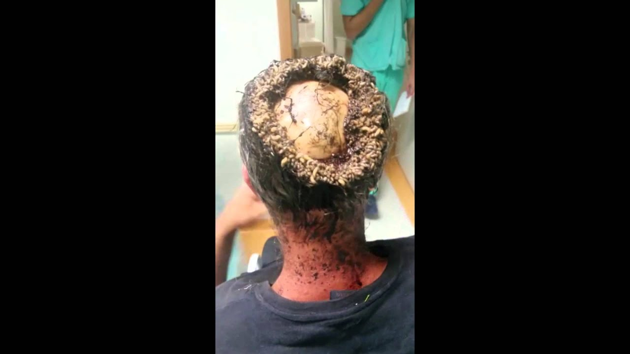 (#TheyNasty) Asian man´s head - viewer discretion advised!