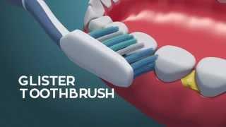 5 Cara Menjaga Kesehatan Gigi dan Mulut - Glister