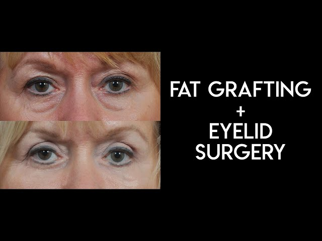 Fat Grafting and Lower Eyelid Surgery