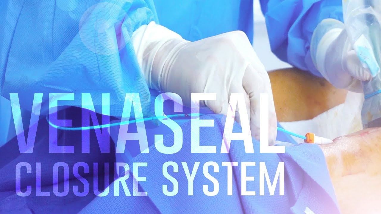 VenaSeal Closure System | Vein Care | Vein Treatment Center