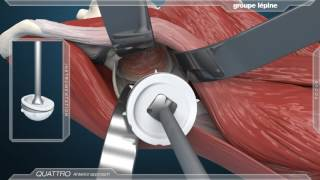 Anterior Approach & Dual Mobility Acetabular Component 3D Animation