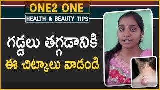 గడ్డలు తగ్గడానికి ఈ చిట్కాలు వాడండి | Health Tips | Telugu Tips | One2 One