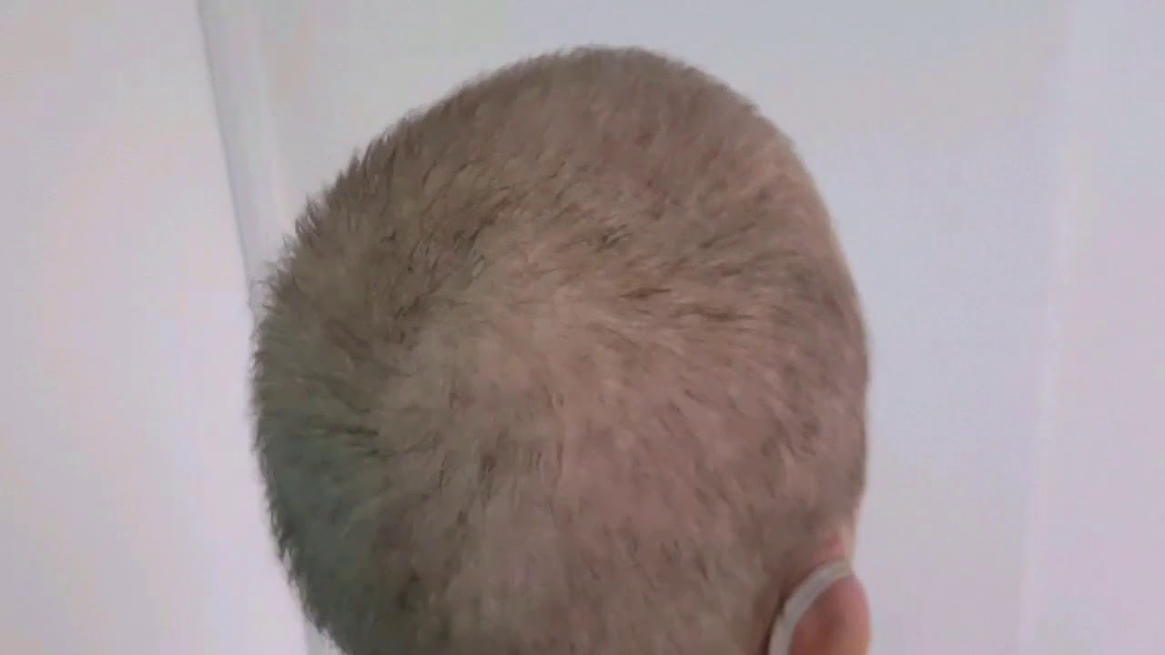 Post chemo Hair Density Recovery SMP Scalp Micropigmentation 1st session by El Truchan